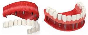 Виды имплантация зубов