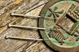 Акупунктура – древние таинства китайской медицины