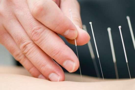 Сеанс иглоукалывания как очень важная для здоровья процедура