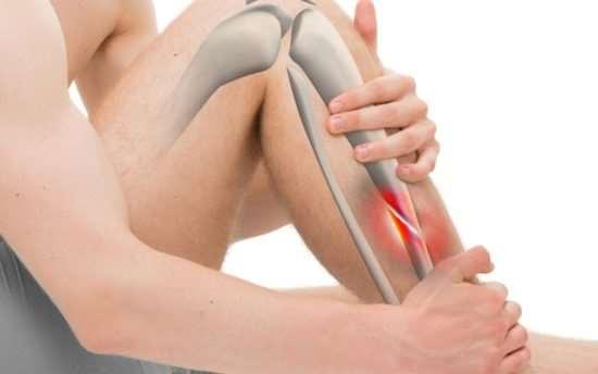 Как производится лечение закрытых переломов