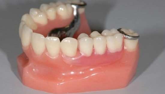 Услуга установки бюгельных протезов в стоматологии Healthy Dent