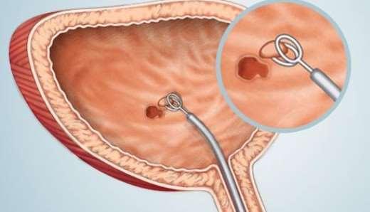 Трансуретральная резекция мочевого пузыря при опухоли: основные моменты