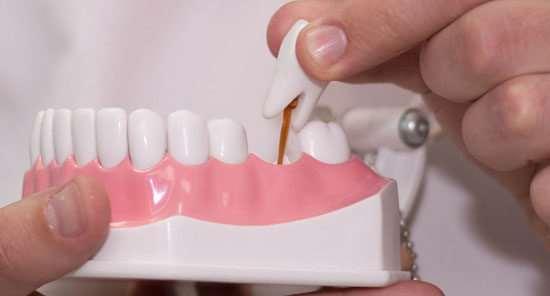 Протезирование зубов: плюсы и минусы