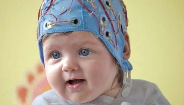 Для чего проводится ЭЭГ сна у ребенка?