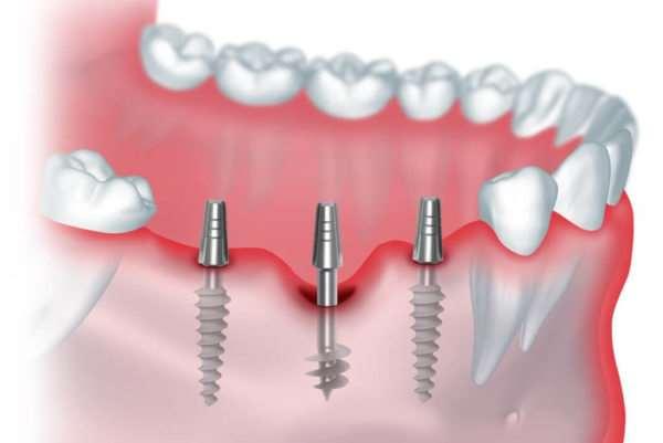 Имплантация зубов как возможность восстановить красивую улыбку