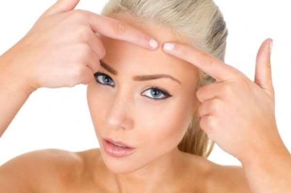 Самые популярные методы лечения угревой сыпи