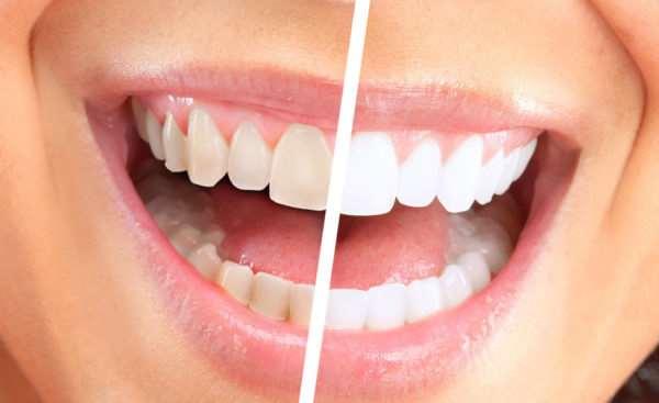 Air Flow- эффективное очищение и отбеливание зубов