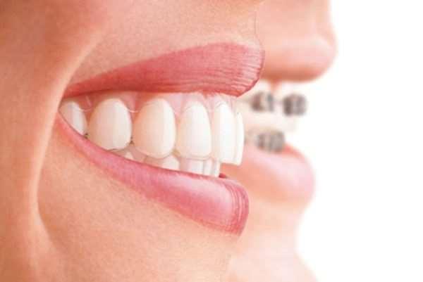 Самые новые и эффективные методы лечения зубов