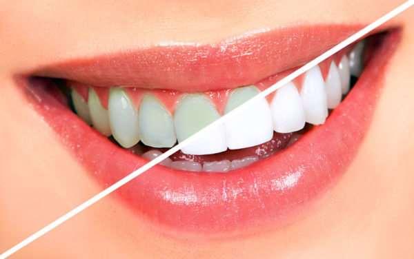 Отбеливание зубов: что предлагают нам современные клиники?