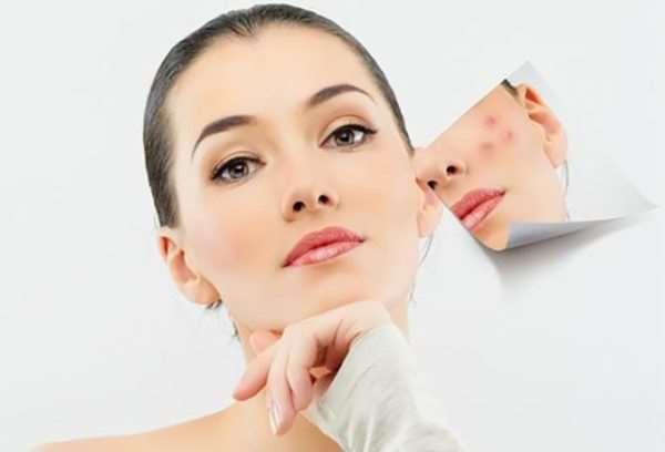 Удаление сосудов на лице - выбираем самый подходящий лазер