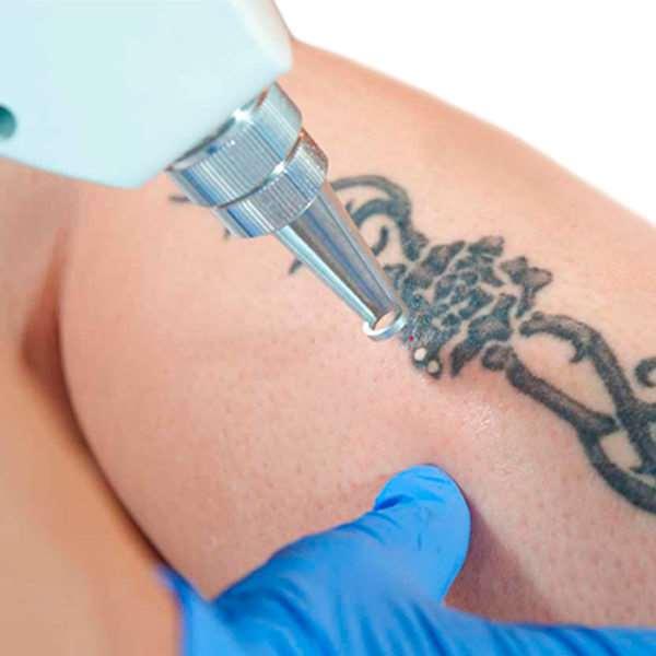 Лазерное удаление тату – что следует знать перед первым сеансом
