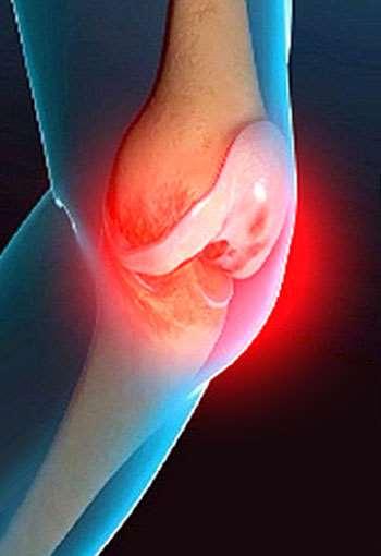 Какие препараты лучше использовать для лечения суставов?