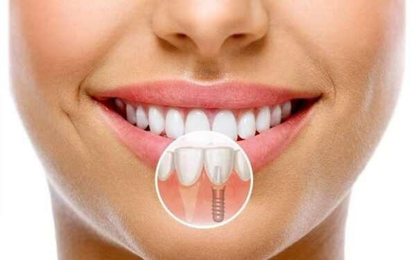 Доводы в пользу проведения имплантации зубов