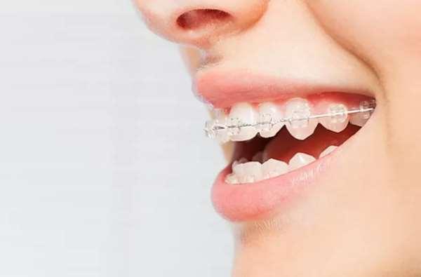 Красивая улыбка – исправление прикуса