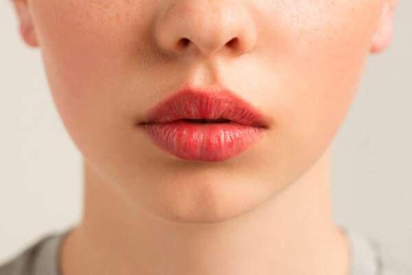 Выбор техники увеличения губ